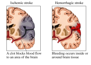 hemorrhagic-stroke-photo